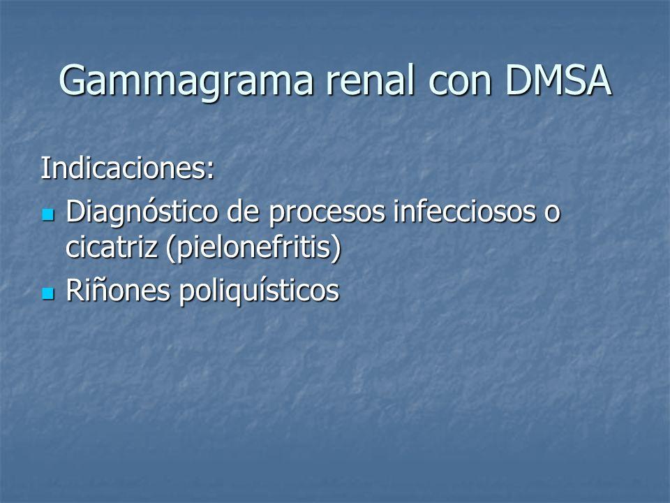 Gammagrama renal con DMSA