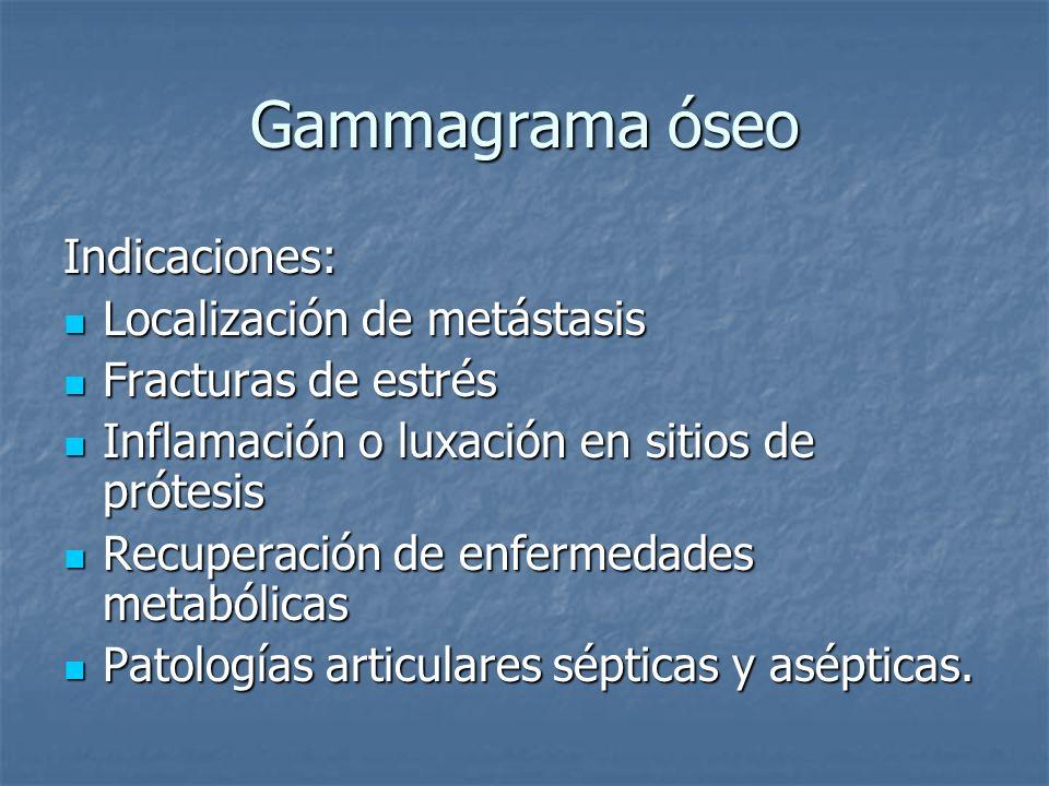 Gammagrama óseo Indicaciones: Localización de metástasis