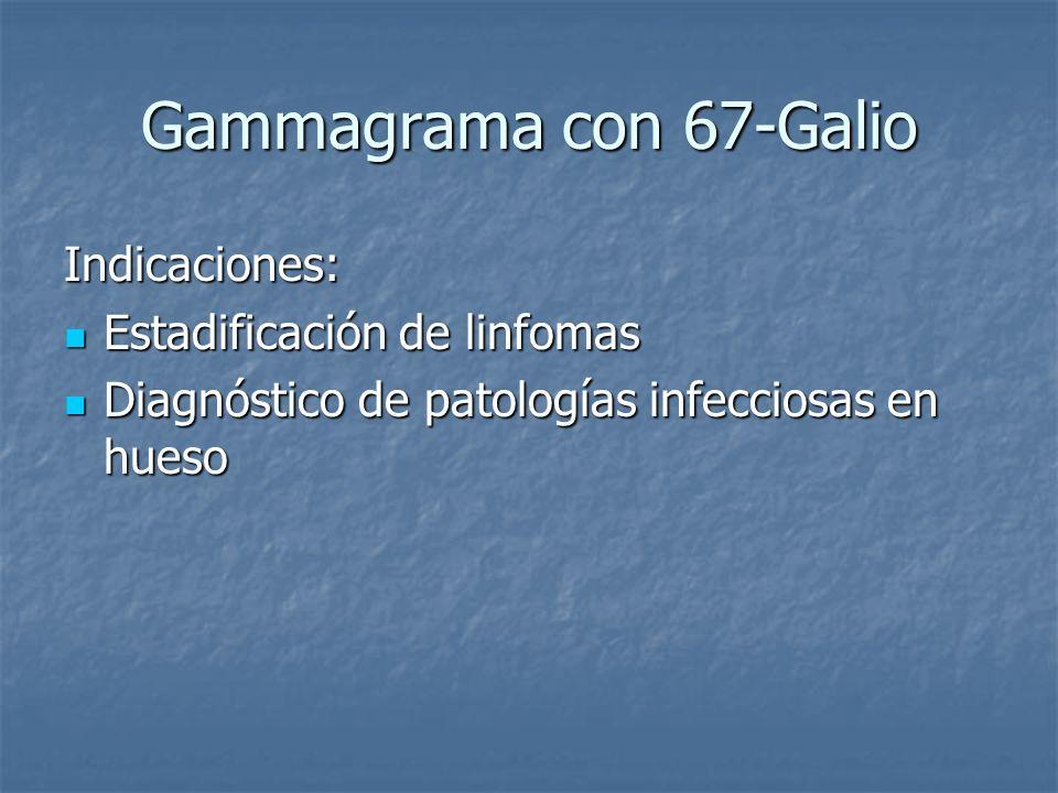 Gammagrama con 67-Galio Indicaciones: Estadificación de linfomas