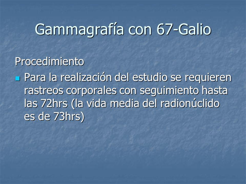 Gammagrafía con 67-Galio