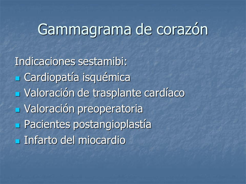 Gammagrama de corazón Indicaciones sestamibi: Cardiopatía isquémica