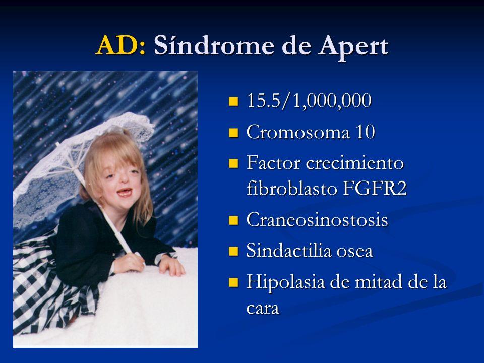 AD: Síndrome de Apert 15.5/1,000,000 Cromosoma 10