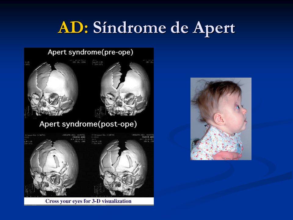 AD: Síndrome de Apert