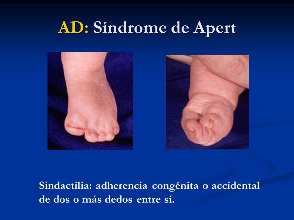 AD: Síndrome de Apert Sindactilia: adherencia congénita o accidental de dos o más dedos entre sí.