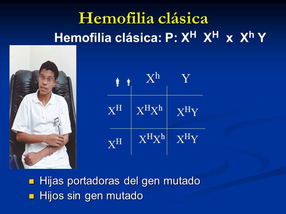 Hemofilia clásica Hemofilia clásica: P: XH XH x Xh Y Xh Y  XH XHXh
