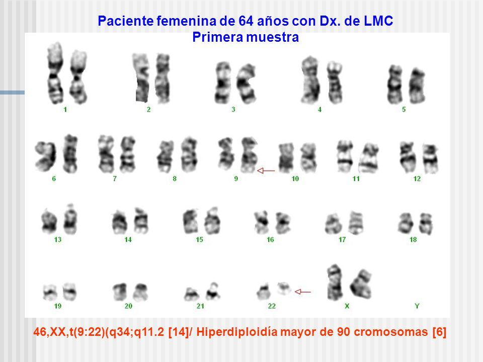 Paciente femenina de 64 años con Dx. de LMC