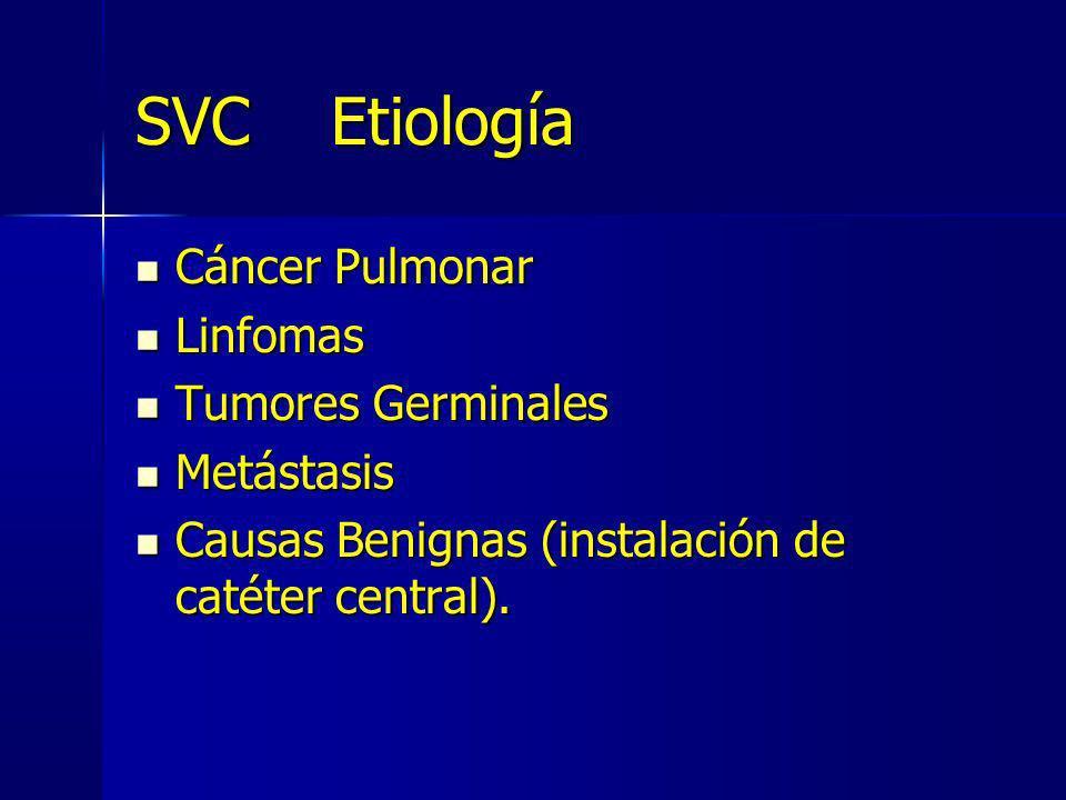 SVC Etiología Cáncer Pulmonar Linfomas Tumores Germinales Metástasis