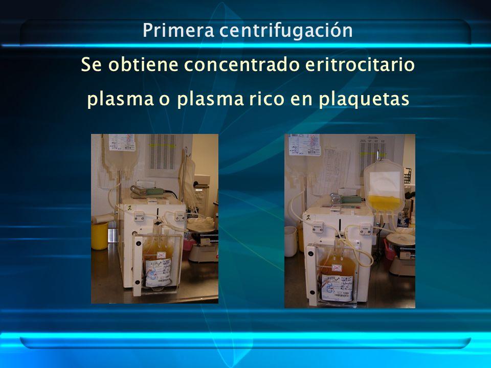Primera centrifugación Se obtiene concentrado eritrocitario
