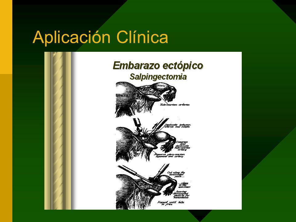 Aplicación Clínica