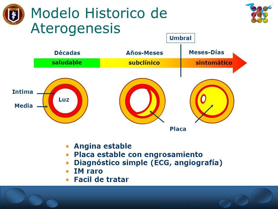Modelo Historico de Aterogenesis
