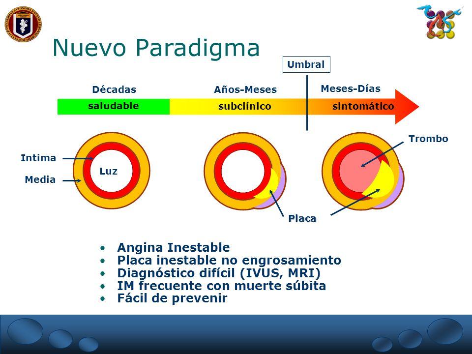 Nuevo Paradigma Angina Inestable Placa inestable no engrosamiento