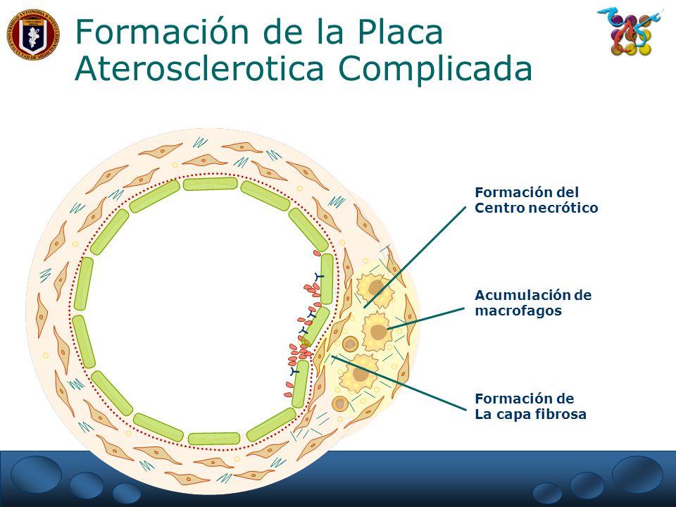 Formación de la Placa Aterosclerotica Complicada