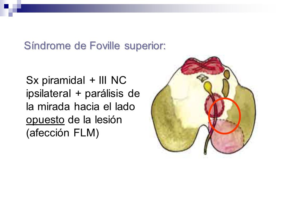 Síndrome de Foville superior:
