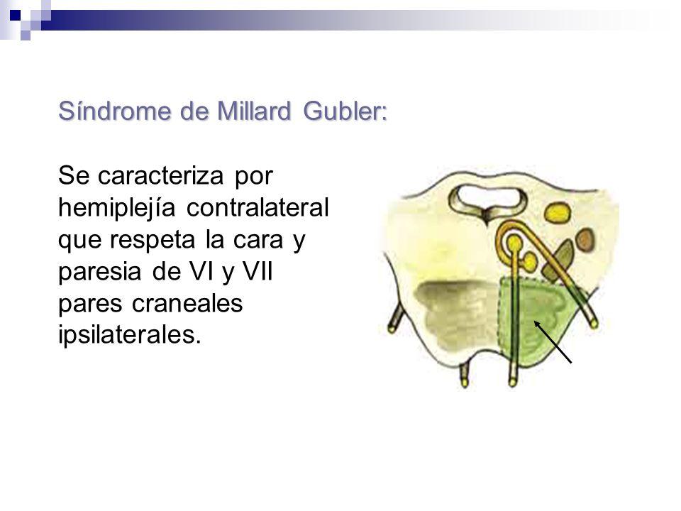 Síndrome de Millard Gubler: