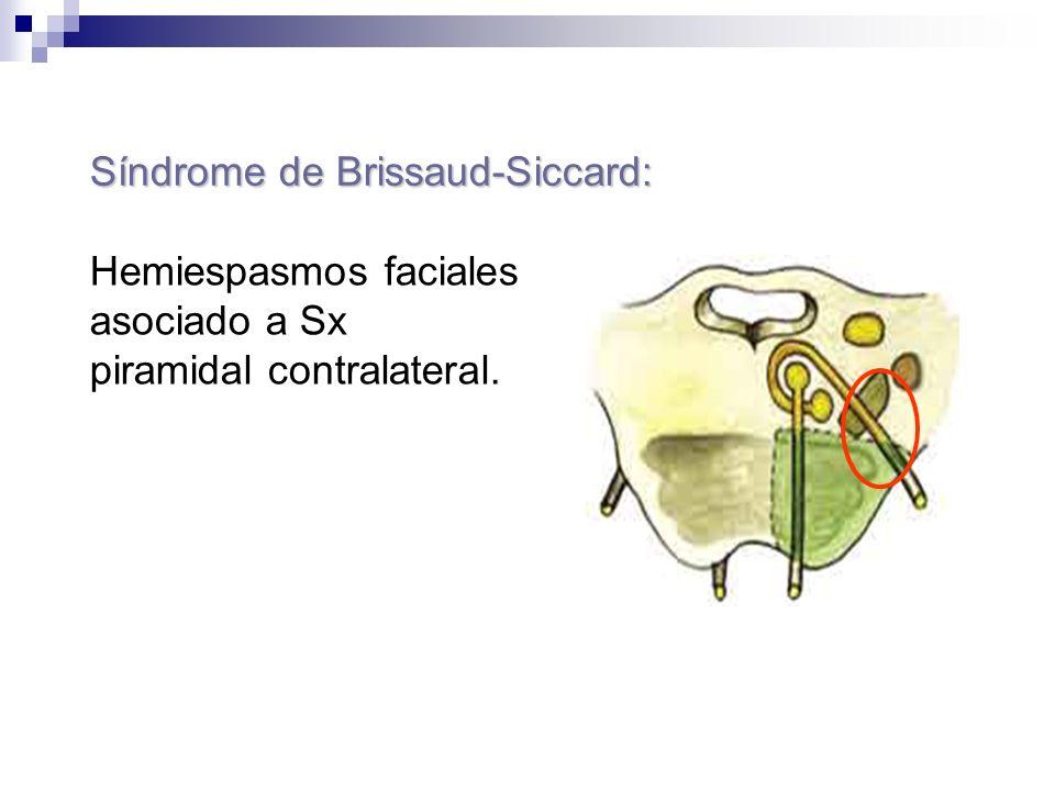 Síndrome de Brissaud-Siccard: