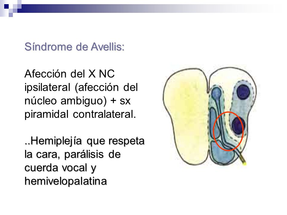 Síndrome de Avellis: Afección del X NC ipsilateral (afección del núcleo ambiguo) + sx piramidal contralateral.