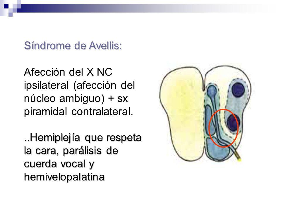 Síndrome de Avellis:Afección del X NC ipsilateral (afección del núcleo ambiguo) + sx piramidal contralateral.