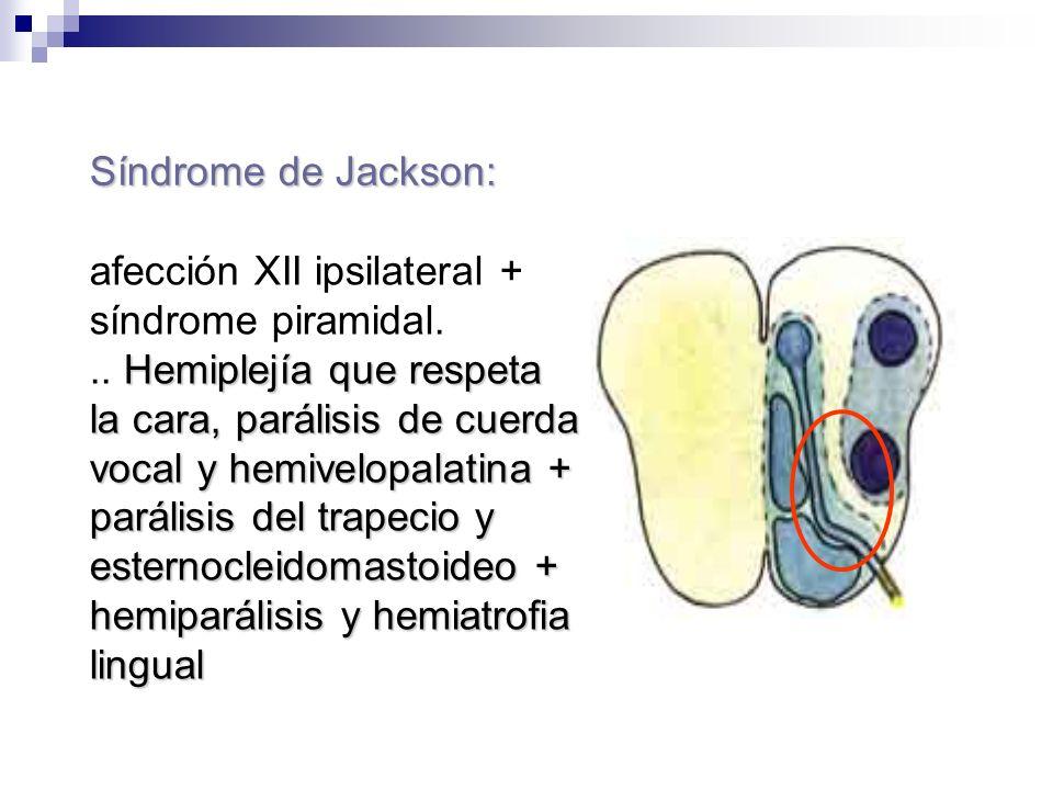 Síndrome de Jackson: afección XII ipsilateral + síndrome piramidal.