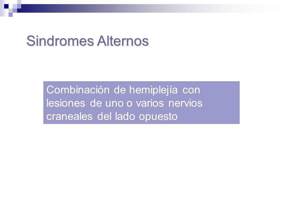 Sindromes Alternos Combinación de hemiplejía con lesiones de uno o varios nervios craneales del lado opuesto.