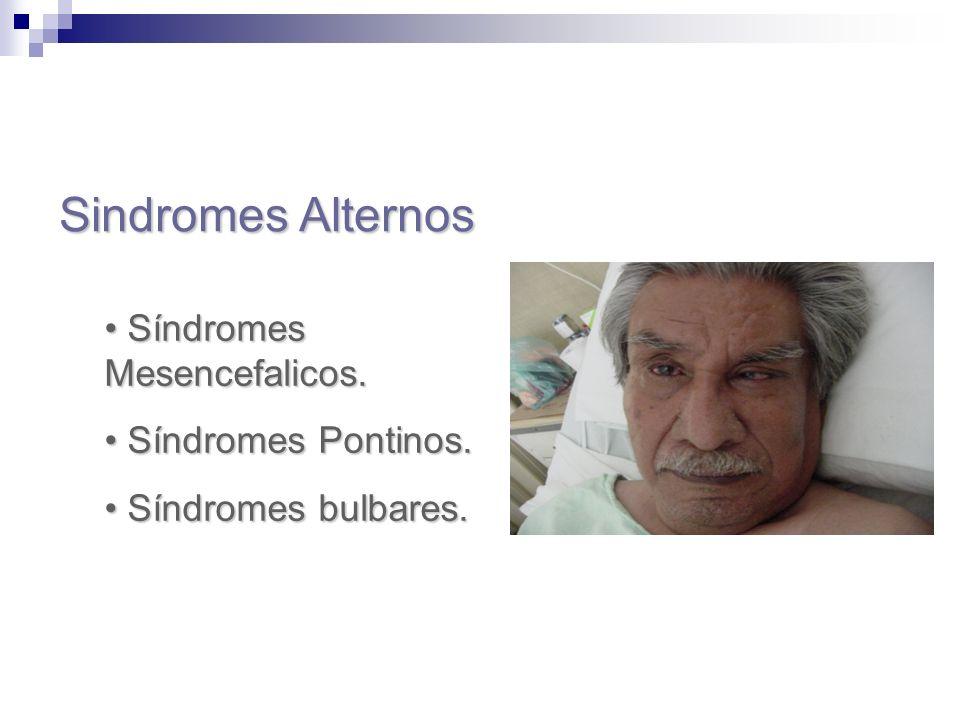 Sindromes Alternos Síndromes Mesencefalicos. Síndromes Pontinos.
