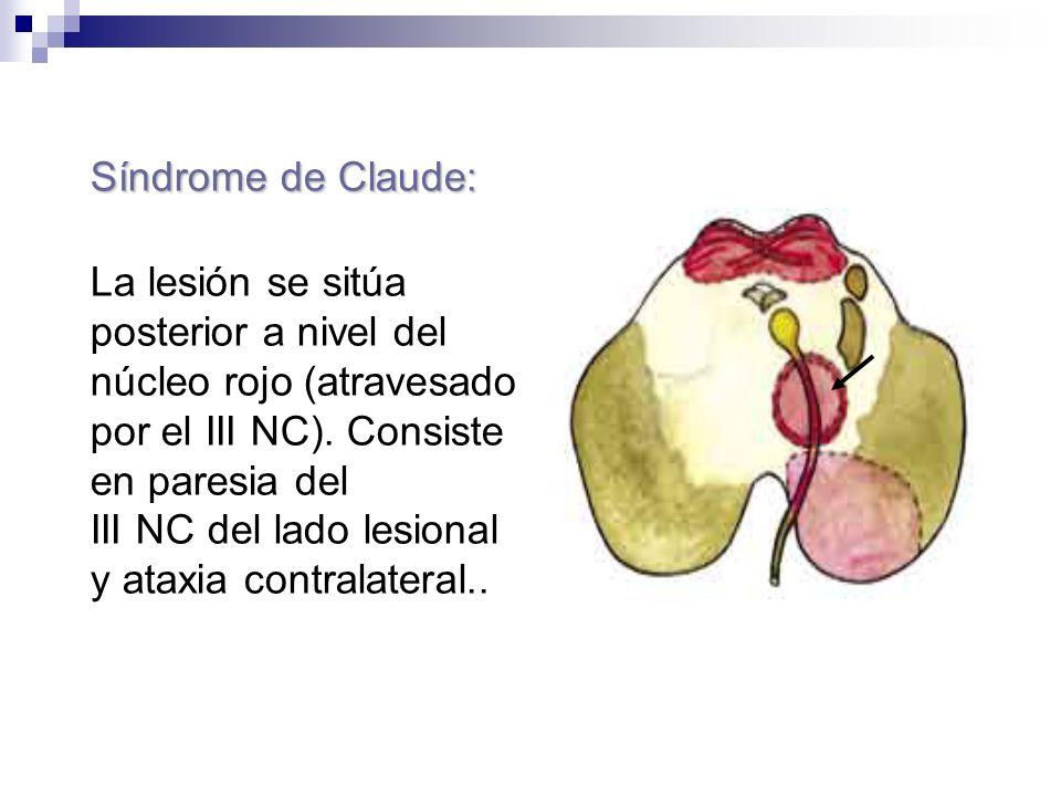 Síndrome de Claude:La lesión se sitúa posterior a nivel del. núcleo rojo (atravesado por el III NC). Consiste en paresia del.