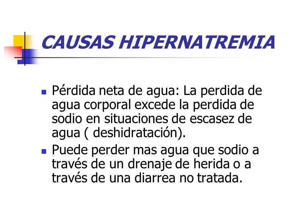 CAUSAS HIPERNATREMIA