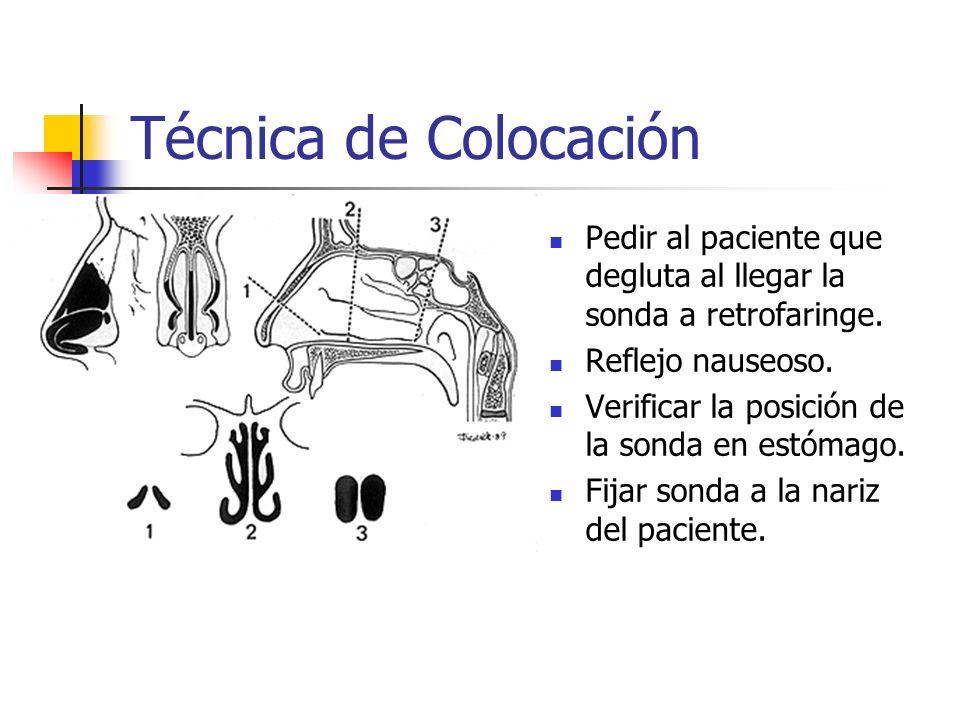 Técnica de Colocación Pedir al paciente que degluta al llegar la sonda a retrofaringe. Reflejo nauseoso.