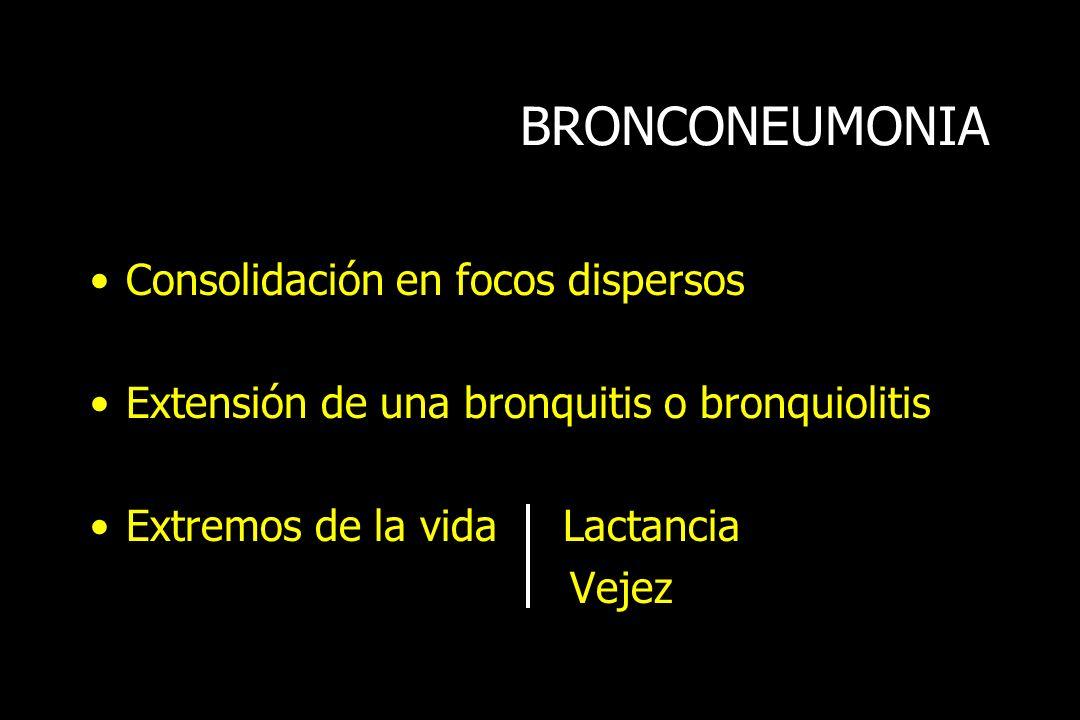 BRONCONEUMONIA Consolidación en focos dispersos
