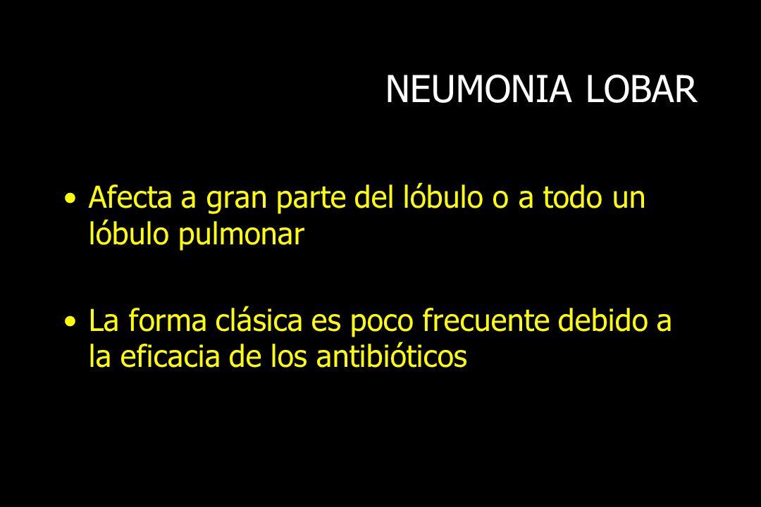 NEUMONIA LOBARAfecta a gran parte del lóbulo o a todo un lóbulo pulmonar.
