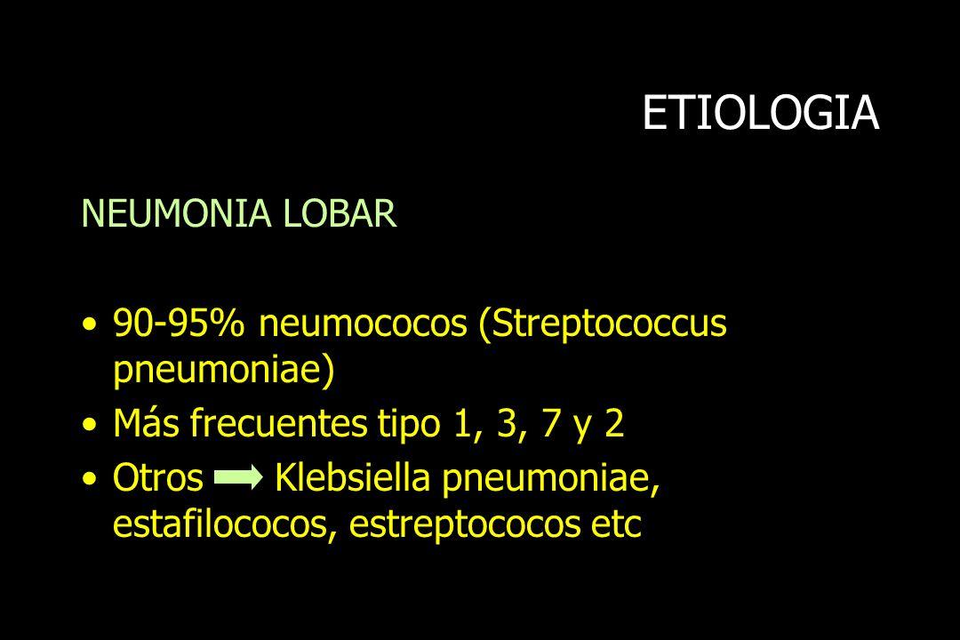 ETIOLOGIA NEUMONIA LOBAR 90-95% neumococos (Streptococcus pneumoniae)