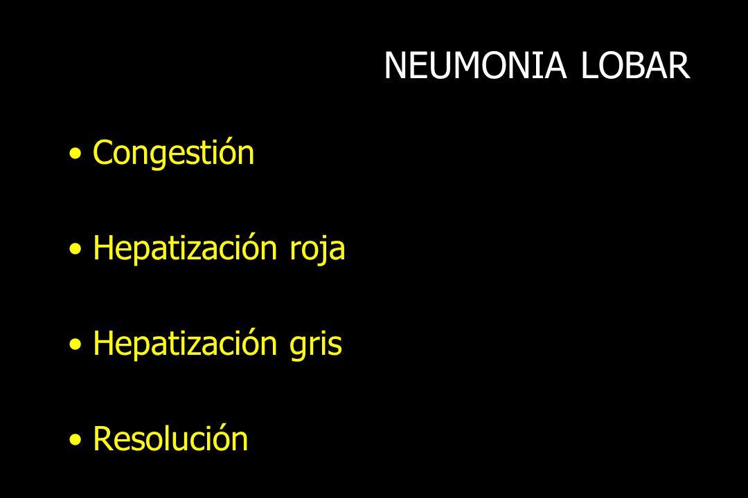 NEUMONIA LOBAR Congestión Hepatización roja Hepatización gris