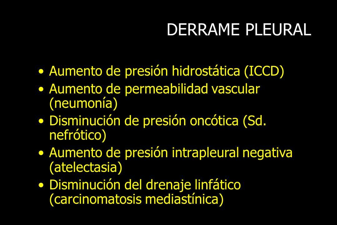 DERRAME PLEURAL Aumento de presión hidrostática (ICCD)