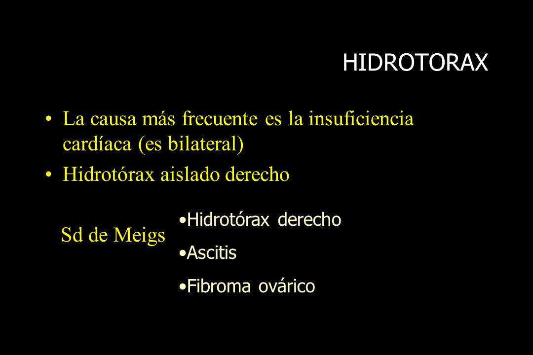 HIDROTORAXLa causa más frecuente es la insuficiencia cardíaca (es bilateral) Hidrotórax aislado derecho.