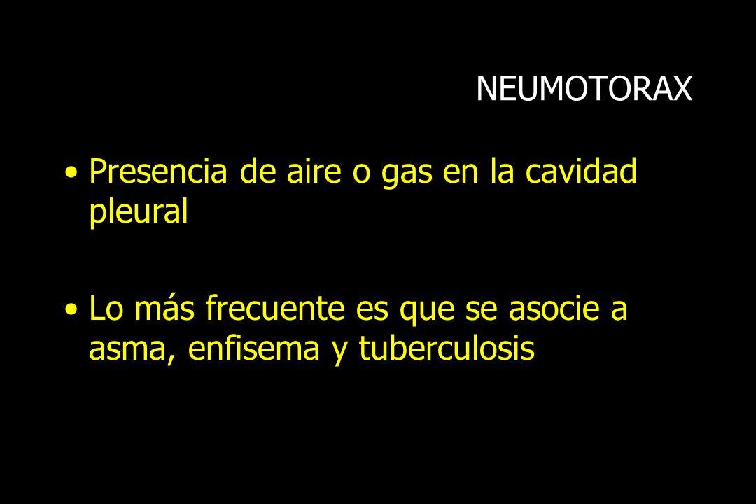 NEUMOTORAX Presencia de aire o gas en la cavidad pleural.