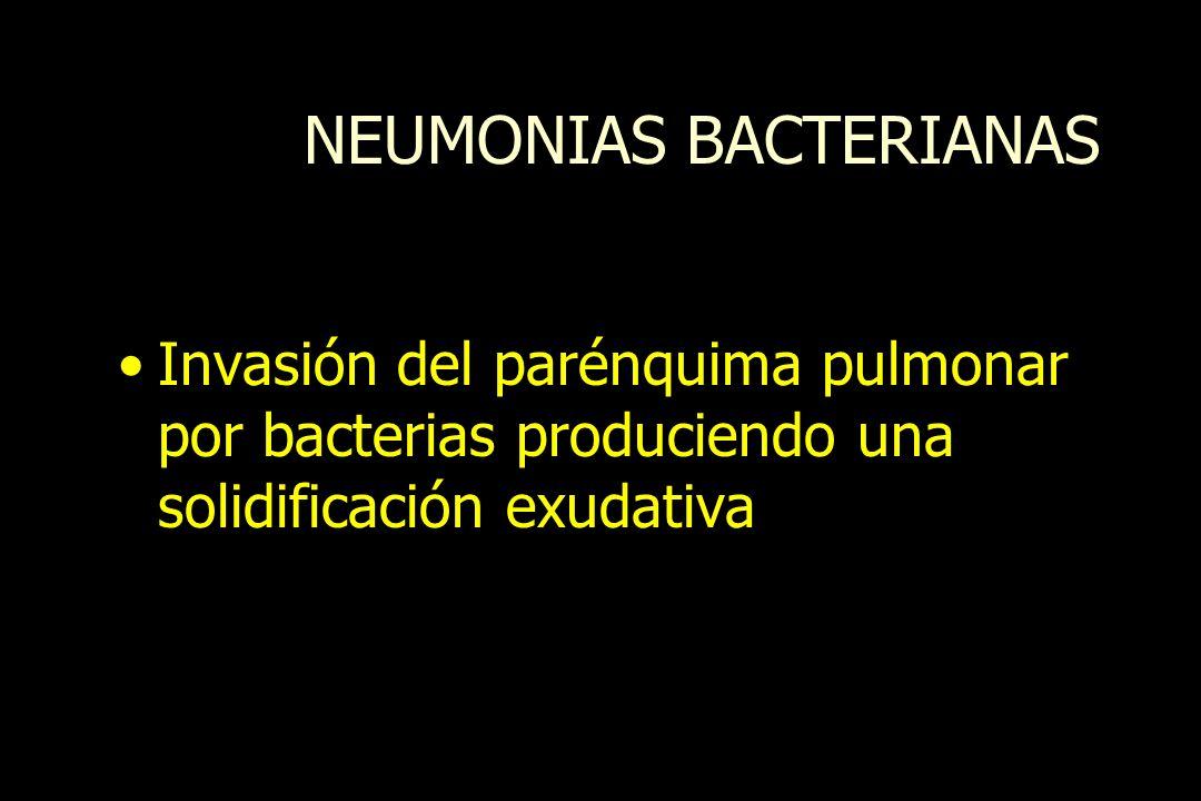NEUMONIAS BACTERIANAS