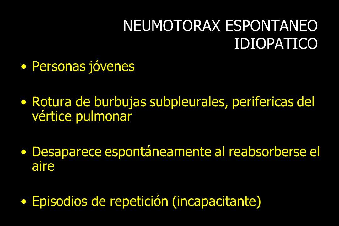 NEUMOTORAX ESPONTANEO IDIOPATICO