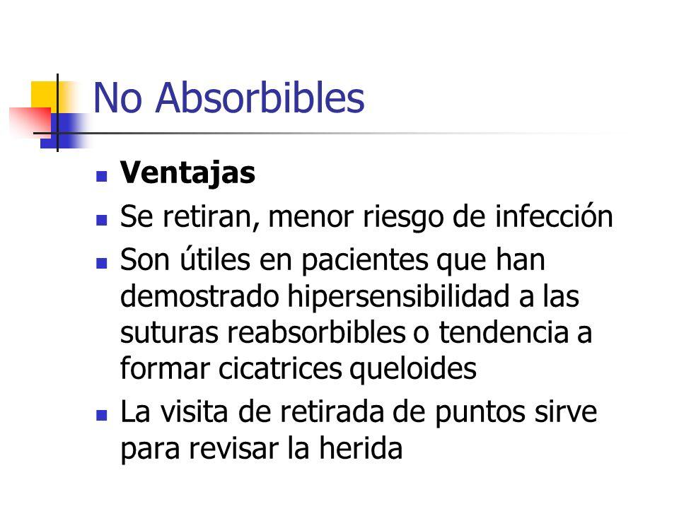 No Absorbibles Ventajas Se retiran, menor riesgo de infección