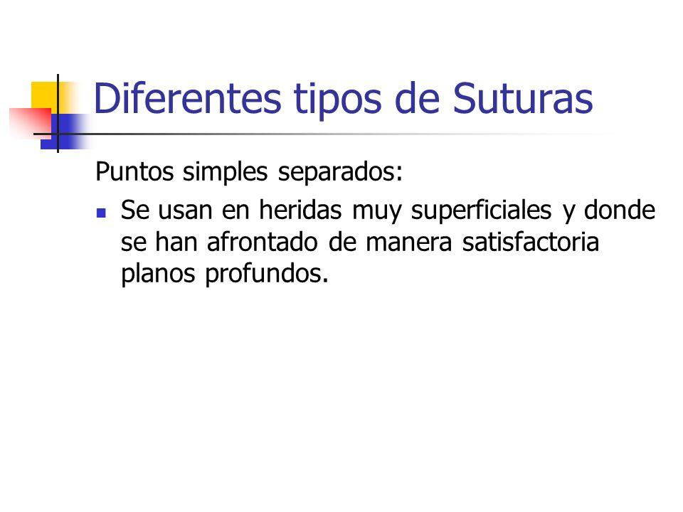 Diferentes tipos de Suturas