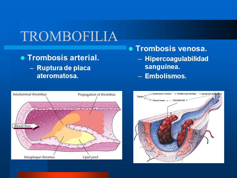 TROMBOFILIA Trombosis venosa. Trombosis arterial.