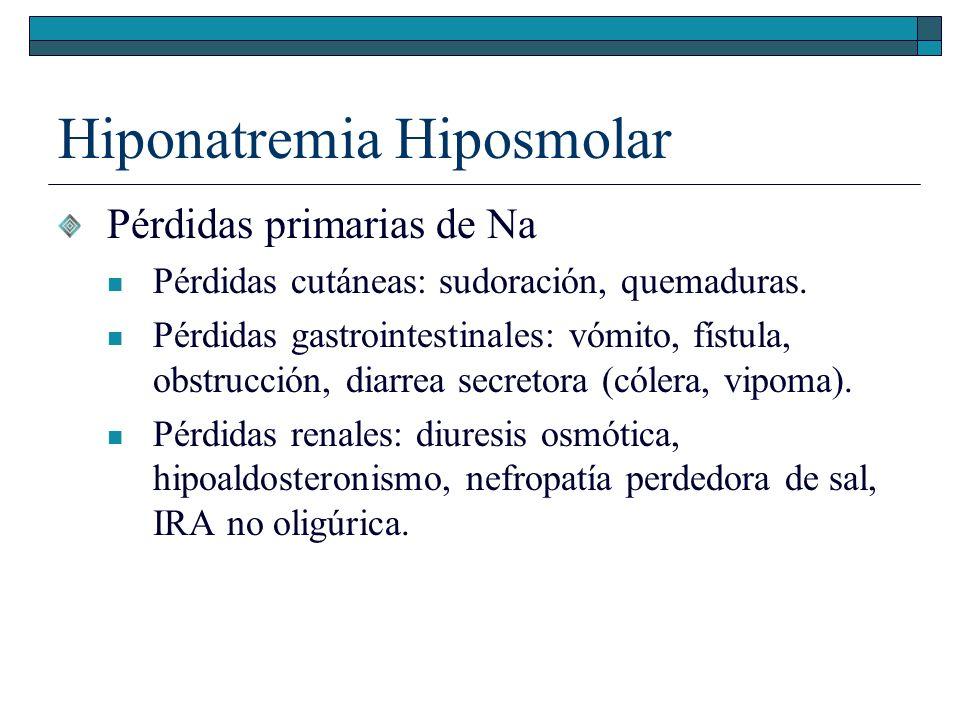 Hiponatremia Hiposmolar