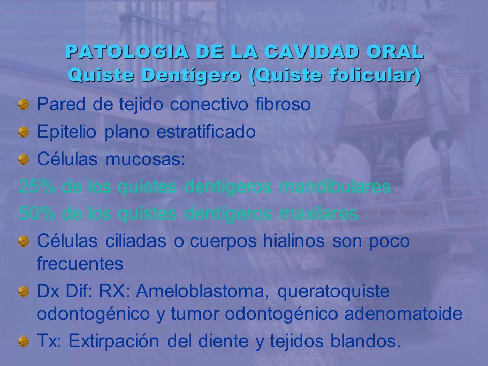 PATOLOGIA DE LA CAVIDAD ORAL Quiste Dentígero (Quiste folicular)