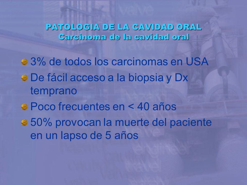 PATOLOGIA DE LA CAVIDAD ORAL Carcinoma de la cavidad oral