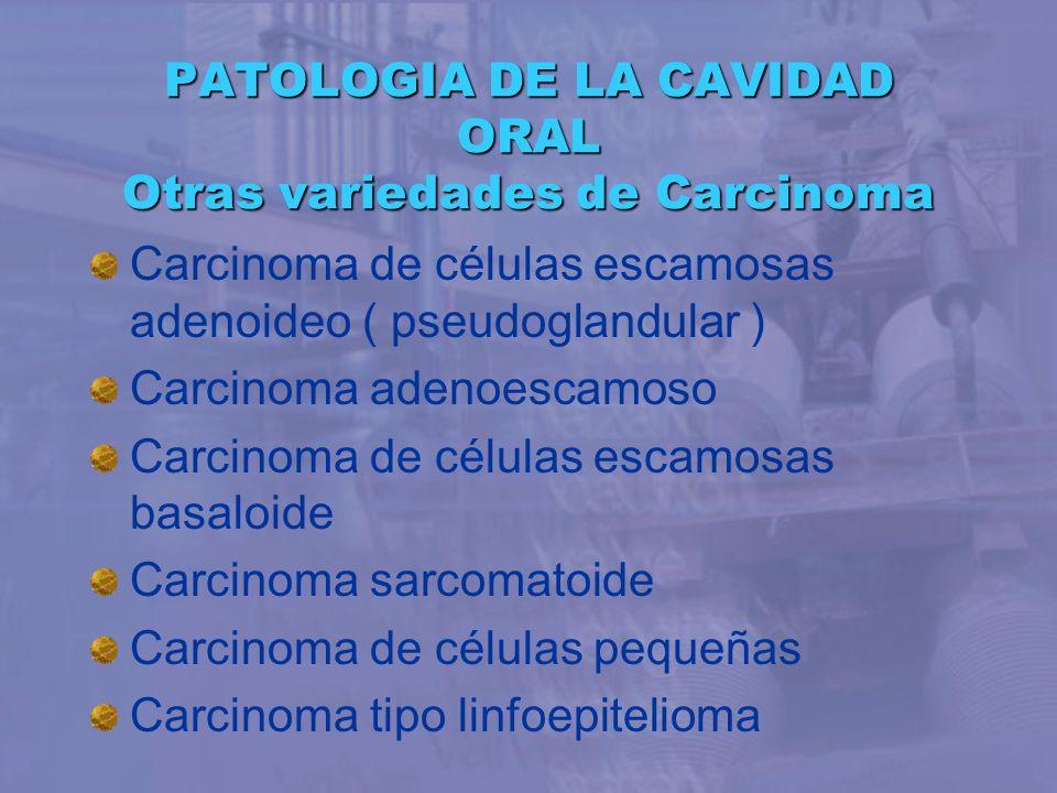 PATOLOGIA DE LA CAVIDAD ORAL Otras variedades de Carcinoma