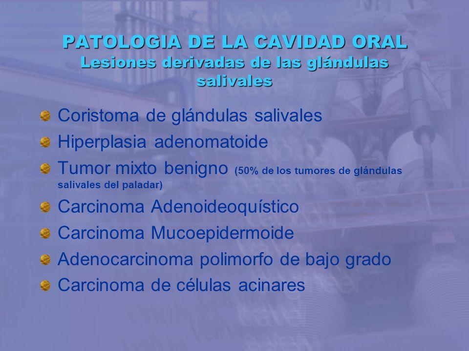 PATOLOGIA DE LA CAVIDAD ORAL Lesiones derivadas de las glándulas salivales