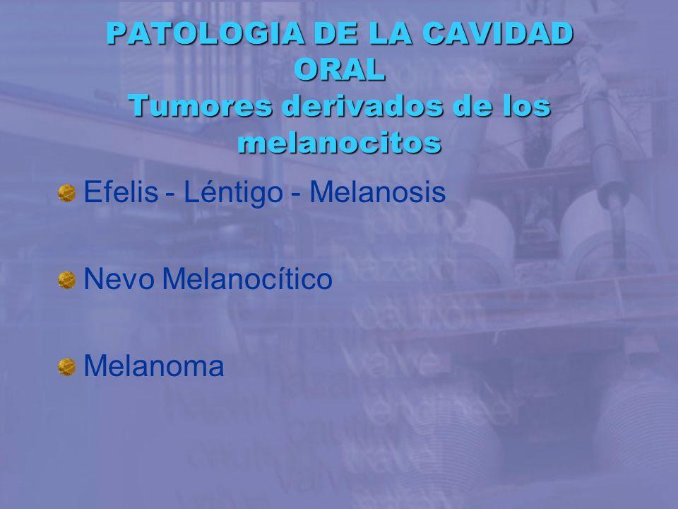 PATOLOGIA DE LA CAVIDAD ORAL Tumores derivados de los melanocitos