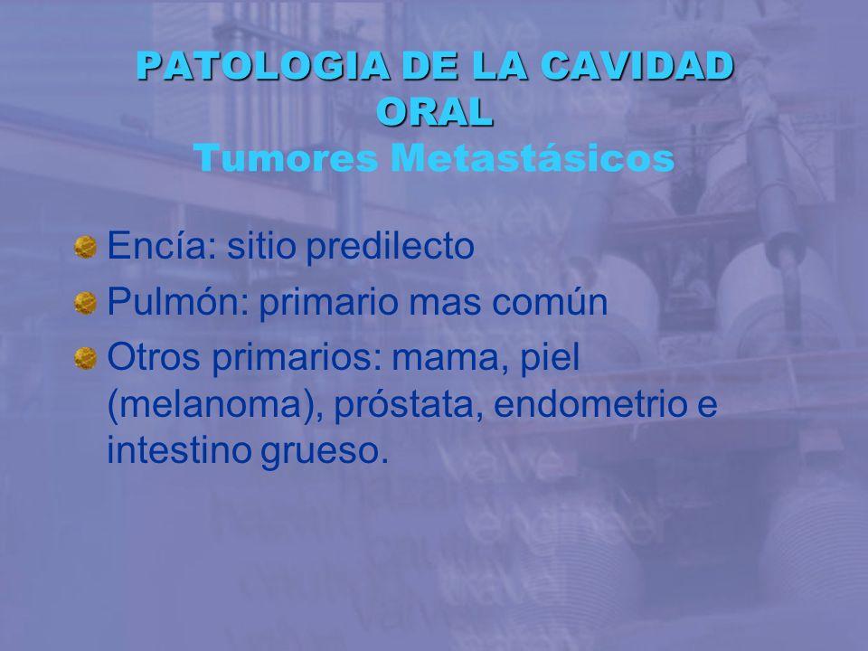 PATOLOGIA DE LA CAVIDAD ORAL Tumores Metastásicos