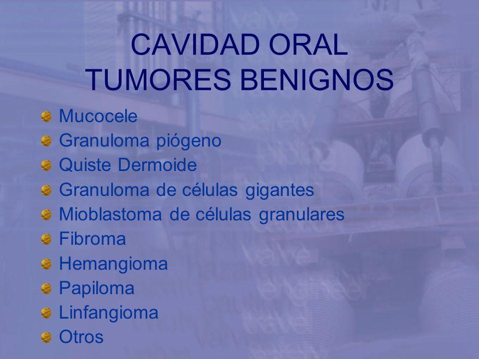 CAVIDAD ORAL TUMORES BENIGNOS