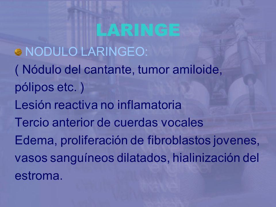 LARINGE NODULO LARINGEO: ( Nódulo del cantante, tumor amiloide,