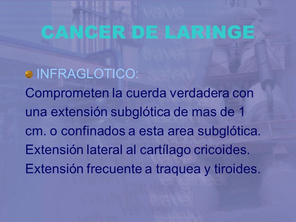 CANCER DE LARINGE INFRAGLOTICO: Comprometen la cuerda verdadera con
