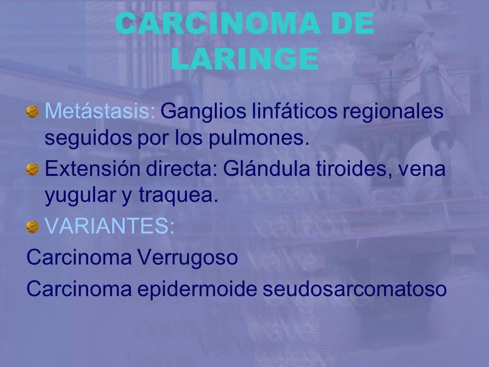 CARCINOMA DE LARINGE Metástasis: Ganglios linfáticos regionales seguidos por los pulmones.